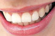 Zanimljivo: koliko često perete zube?